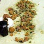 Kamienie Wątrobowe